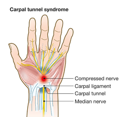 Karpale tonnel-sindroom (CTS – Carpal Tunnel Syndrome)