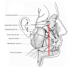 Om posteriort om linjen alltid exploration och nervsutur om skada (inom 72 timmar)  Om anteriort inte måste utan beroende på symtom