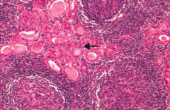 Hürthle cells, lymphoid aggregate with germinal centers