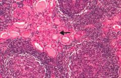 Hashimoto Thyroiditis