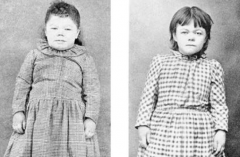 What is wrong with the child on the left (before) and after treatment on the right?