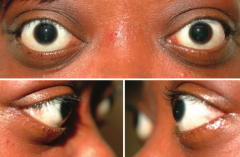 Exophthalmos: proptosis, extraocular muscle swelling