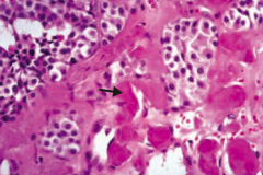 If you see this on a sample of the thyroid, what diagnosis do you need to think of?