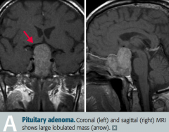 Non-functional pituitary adenoma, causing problems due to mass effect