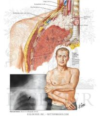 A tumor at apex of lung = Pancoast tumor & may cause pressure on LOWER TRUNK of brachial plexus (C8-T1).   Leads to   Thoracic outlet syndome  -also possibly via pressue on subclavian artery by CERVICAL rib.  --Remember, lower brachial plexu...