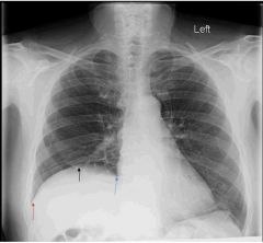 Shown here is a patient's xray & let's just pretend at the moment he's INSPIRING. There is paralysis of half of the diaphragm.   This may result from injury of what nerve?  In this case, is the left or right phrenic nerve injured?