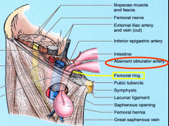 The femoral hernia passes BELOW the inguinal ligament & protrudes through the saphenous opening, an opening into the fascia lata, into the superficial fascia.   If you decide on a surgical treatment, what artery do have to look out for?   Aber...