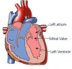 Mitral valve failure may cause:   Left atria enlargement -- makes sense, blood will accumulate in left atrium   Left atria enlargement may compress the esophagus/ symptoms: dysphagia