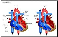 """What causes atrial septal defect?  Failure of foramen ovale to close   Specifically what to septum fail to fuse?  Failure of septum """"prisci""""cella:  PRImum & SECundum  Postnatally, what type of shunt results from atrial septal defect? Left--t..."""