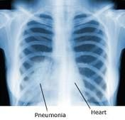 Cough, chest pain, fever & difficulty in breathing.  Enlagarment of bronchomediastinal lymph nodes
