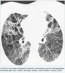 - Fleckschatten oder diffus verteilten milchglasartigen Infiltraten.  - chronische Form: knotig-streifige Zeichnungsvermehrung insbesondere in den Lungenoberfeldern
