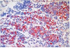 """・Makroskopie - regressive Veränderungen mit Nekrosen durch das schnelle Wachstum   ・Histologie - extrem zytoplasmaarme, kleine Zellen mit heterochromatischen Zellkernen (Haferkörner bzw. """"oat cell carcinoma"""") und neuroendokriner Differen..."""