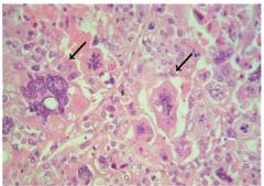 ・Definition - Sammelbegriff für entdifferenzierte Plattenepithel-, Adeno- und vereinzelt auch neuroendokrine Karzinome, die aus großen, plumpen zytoplasmareichen Zellen bestehen (Pfeil)   ・Lokalisation - v.a. Lungenperipherie