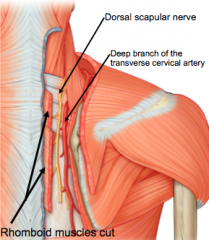 Deep branch of transverse cervical artery