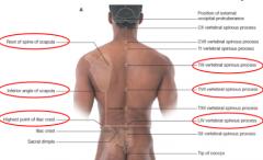 T3 spinous sprocess      T7 spinous process      L4 spinous process - L4/L5 intervertrbral disc