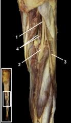 1.Sciatic nerve 2.Tibial nerve 3.Common fibular nerve 4.Popliteal artery & vein