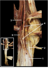 The nerves and vessels of the posterior compartment of the leg run deep to the soleus muscle and superficial to the deep muscles of the leg.  1.Soleus muscle 2.Transverse intermuscular septum 3.Tibial nerve 4.Posterior tibial artery & vei...