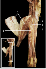 1.Reflected gastrocnemius & soleus muscles 2.Posterior tibial artery 3.Fibular artery 4.Tibial nerve 5.Tendon of plantaris muscle
