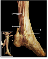 The relationship between the tendons of the three muscles found in the deep group of muscles of the leg is shown. The location of the tendons of the three muscles, just inferior to the medial malleolus, is constant.  1.Medial malleolus 2.Tend...