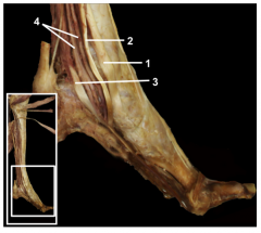 Dissection of the tendon of the flexor hallucis longus muscle away from the sustentaculum tali allows identification of the constant relationship of the tendons of the muscles found in the deep group.  1.Tibialis posterior muscle 2.Flexor dig...