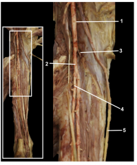 The popliteal artery gives rise to the posterior tibial artery. The fibular artery arises from the posterior tibial artery.  1.Popliteal artery 2.Posterior tibial artery 3.Anterior tibial artery 4.Fibular artery 5.Tibial nerve (reflecte...