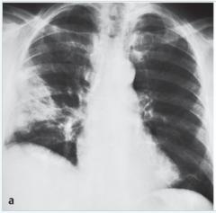 -In der Akutphase häufig unauffällig   -prominente Hili   - Kalibersprünge in den zentralen Gefäßen   - regionale Perfusionsstörungen      (- Bild:Im Mittel- und Unterfeld dreieckförmige Verschattung (Lungeninfarkt). Kle...