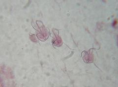 Flagellate Know species Giardia lamblia DH: humans/mammals pathogenix Eight flagella Binucleate trophs Adhesive disk Trophs in intestine Cysts in feces > water Cysts have 4 nuclei grouped together