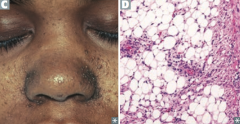 HAMARTOMAS: - Hamartomas in CNS and skin - Angiofibromas (C) - Mitral regurgitation - Ash-leaf spots - Rhabdomyoma (cardiac) - Tuberous sclerosis - autosomal dOminant - Mental retardation - Angiomyolipoma (renal) (D) - Seizures and Shagr...