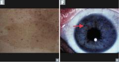 Neurofibromatosis Type 1 (von Recklinghausen disease) - Café-au-lait spots (E) - Lisch nodules (pigmented iris hamartomas) (F) - Neurofibromas in skin - Optic gliomas - Pheochromocytoma