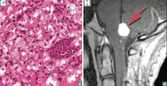 von Hippel-Lindau Disease - Mutation results in constitutive expression of HIF (transcription factor) and activation of angiogenic growth factors - Cavernous hemangiomas in skin, mucosa, and organs - Bilateral renal cell carcinoma - Hemangiobl...