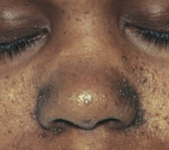 Angiofibromas of the face - Caused by Tuberous Sclerosis