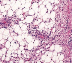 What aspect of Tuberous Sclerosis has this histology?