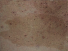 What is this skin finding? Associated with what disease?