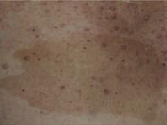 Café-au-lait spot - Caused by Neurofibromatosis type I (von Recklinghausen disease)