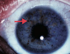 Lisch nodule (pigmented iris hamartoma) - Caused by Neurofibromatosis type I (von Recklinghausen disease)