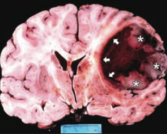What tumor is found in the cerebral hemispheres and is known for crossing the corpus callosum?