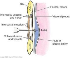 costodiaphragmatic recess  intercostal nerve
