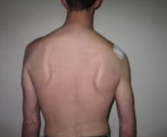shoulder droop         diminished shoulder elevation, inability to shrug shoulders against resistance      inability to raise arm above head