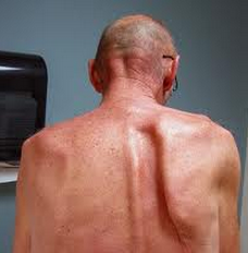 Damage to which nerve causes a winged scapula?      What can cause this?
