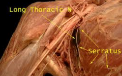 long thoracic nerve      removal of axillary lymph nodes, mastectomy      *atrophy of serratus anterior muscle