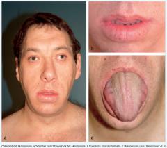 - Kinder (vor Epiphysenfugenschluss)   → hypophysärer Riesenwuchs (Gigantismus) mit Körpergröße > 2 m  - Erwachsene (nach Epiphysenfugenschluss)   → schleichende Akro- und Viszeromegalie   →Vergrößerung der Zunge (kloßige Spr...