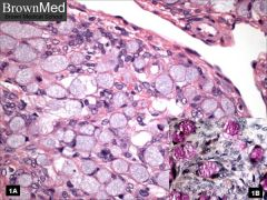 Ovarian metastasis from gastric carcinoma or breast cancer