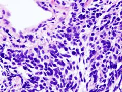 Small cell carcinoma of the lung