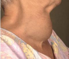 - Stadium I → tastbare Struma, die bei rekliniertem Hals nicht sichtbar (Ia) oder sichtbar (Ib) ist - Stadium II → Struma bei normaler Kopfhaltung sichtbar   - Stadium III →  Struma mit lokalen Stauungs- und Kompressionszeichen (Bild)