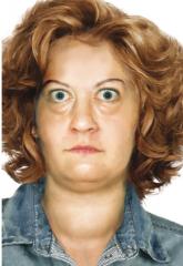 - seltener Lidschlag (Stellwag-Zeichen)  - sichtbarer Sklerastreifen oberhalb der Hornhaut (Dalrymple-Zeichen)  - Zurückbleiben des oberen Augenlides bei Blicksenkung (Graefe-Zeichen)  - Konvergenzschwäche (Möbius-Zeichen)  - Lichtscheu, re...