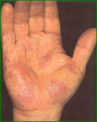 occurs on the hands and feet with noted peeling and small tapioca pudding blisters on the palms or lateral borders of the fingers (referred to as pomphylox), Usually an associated hyperhidrosis or excess sweating,  Treat with class I or II steroid...