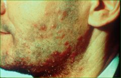 follicular-based pustule, frequently grouped