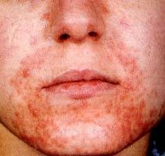 females age 16-45, erythematous, micropapular, fine scaling eruption, nasolabial folds, chin and upper lip, etiology unknown(maybe toothpaste?)