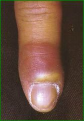 red, painful area proximal/lateral to nail fold, post trauma, usually staph, I&D, penicillinase resistant antibiotics (acute)