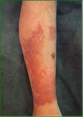 variant of cellulitis caused by group A streptococci, lymphatics involved, sharply demarcated from normal skin, spreads centrally, painful, face, lower legs, areas w/preexisting lymphedema, umbilical stump